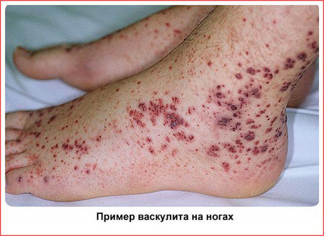 Васкулит на ногах: лечение, фото, симптомы и причины