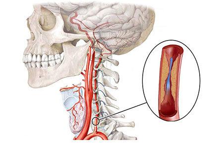 Гипоплазия правой позвоночной артерии: что это такое, симптомы и лечение