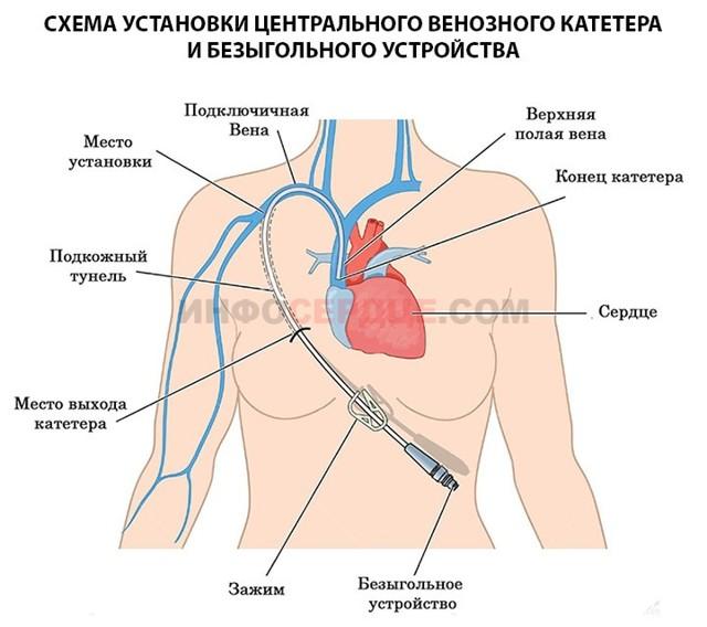 ЦВД (центральное венозное давление): норма, алгоритм измерения, отклонения