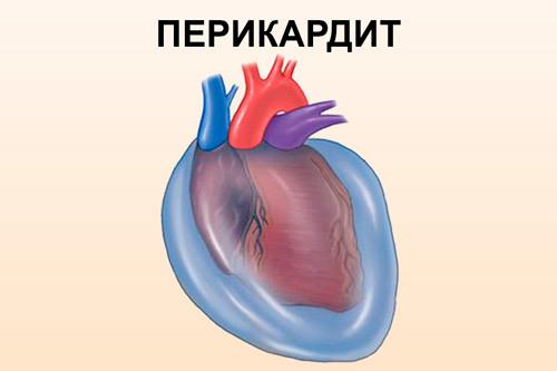Как болит сердце у женщин: симптомы и признаки проблем кардиологического профиля