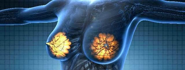 Дисплазия молочной железы: что такое - доброкачественная дисгормональная дисплазия