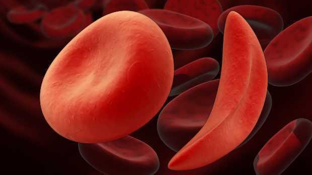 Серповидноклеточная анемия: что это, симптомы и лечение, мутации
