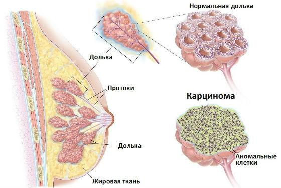 Карцинома молочной железы: что это такое, причины, виды, диагностика и лечение