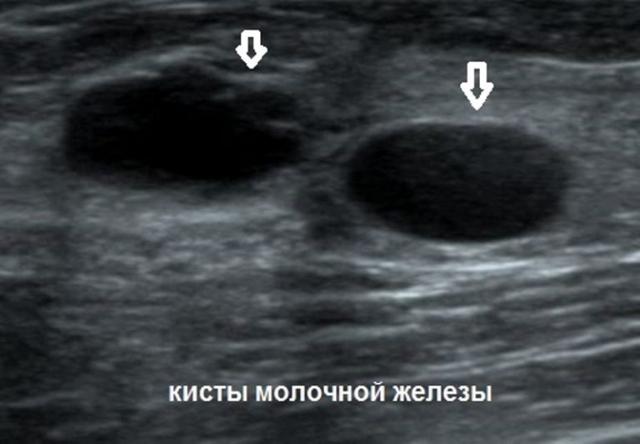 УЗИ молочных желез: что показывает, расшифровка показаний, где можно сделать