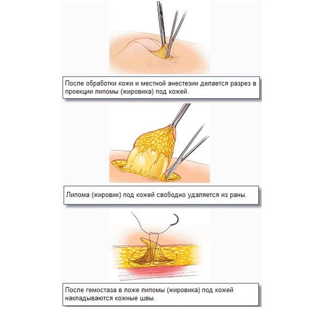 Фибролипома молочной железы: что это такое, причины и лечение липофиброза