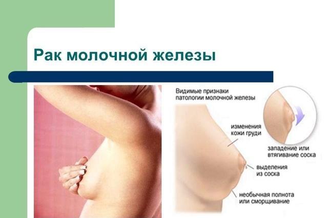 Питание после химиотерапии при раке молочной железы: основы правильной диеты