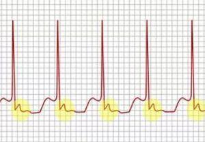 Пульс 120 ударов в минуту в состоянии покоя: что делать, причины и опасно ли