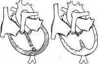 Дефект межжелудочковой перегородки (ДМЖП) у детей и взрослых: симптомы и лечение