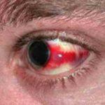 Кровоизлияние в глаз: причины, лечение, последствия и что делать