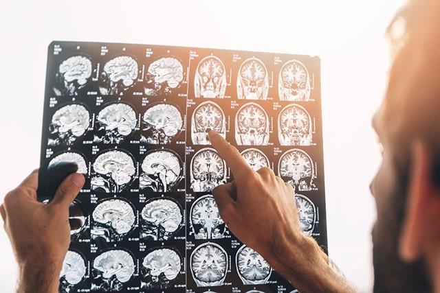 Лакунарный инсульт головного мозга: что это такое, симптомы, лечение и последствия