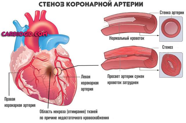 Гипергликемия: что это такое, симптомы у женщин и мужчин, первая помощь