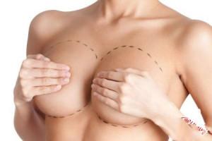 Реабилитация после маммопластики или увеличения молочных желез: период и этапы