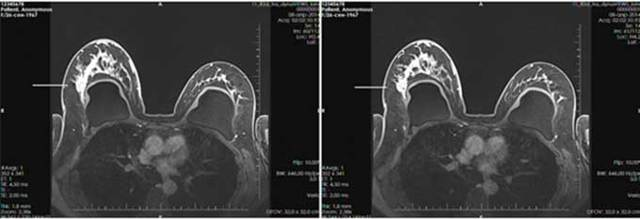 Дуктэктазия молочной железы: что это такое, симптомы, причины, методы лечения