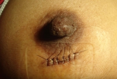 Фибромиома молочной железы: что это такое, причины, симптомы, методы лечения