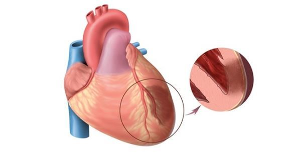 Почему колит сердце: 15 причин что это может быть и что делать