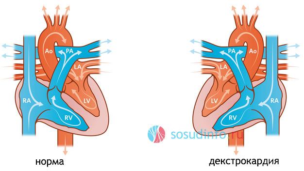 Декстрокардия (сердце справа): что это, причины, симптомы и последствия