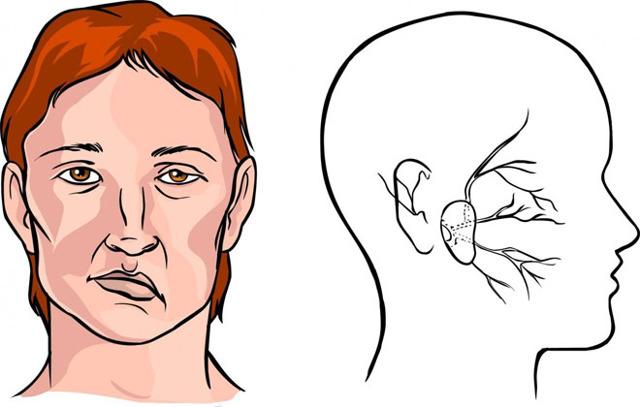 Профилактика инсульта головного мозга у женщин и мужчин