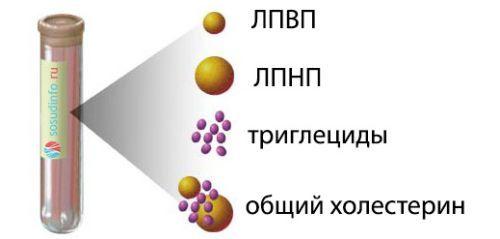 Липидограмма: что это за анализ на липидный спектр, расшифровка показателей