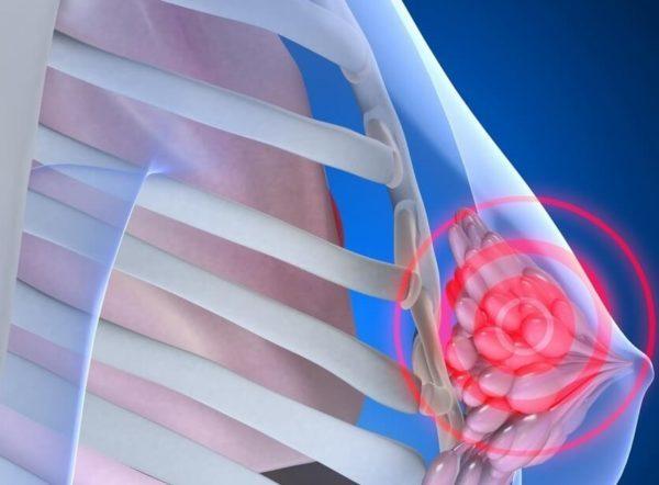 Инволютивные изменения в молочных железах – что это такое и что с ними делать