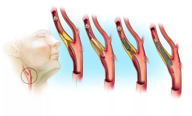 Атеросклероз сонных артерий: симптомы, лечение и чем опасен