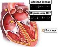 АВ блокада 1,2,3 степени: что это такое на экг, причины, симптомы и лечение