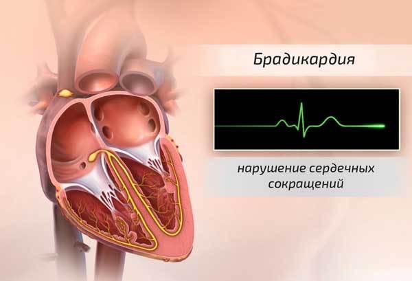 Брадикардия сердца: что это такое, симптомы и лечение, причины и опасность