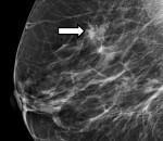 Кальцинаты в молочной железе: что это такое, виды, диагностика и лечение