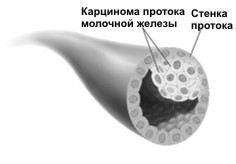 Рак молочной железы 2 степени: продолжительность жизни, признаки, лечение