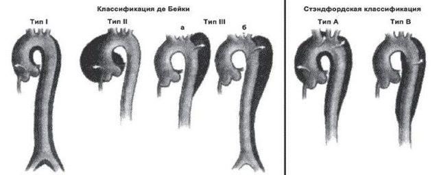 Расслоение аорты: симптомы, причины, лечение, классификация Де Бейки