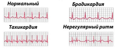 Перебои в сердце: причины и как лечить нарушения пульса