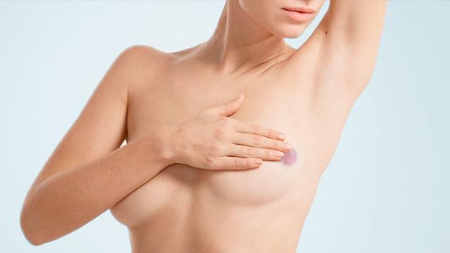 Ушиб груди - что делать с гематомой на молочной железе: обзор методов лечения