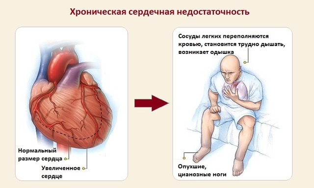 Одышка при сердечной недостаточности: лечение и симптомы