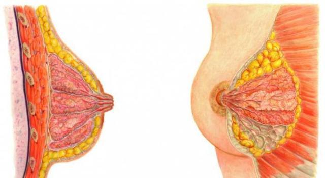 Уплотнение в молочной железе при грудном вскармливании: причины и лечение