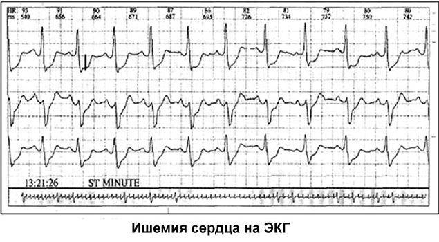 Кардиогенный шок: что это, симтомы, алгоритм неотложной помощи, причины
