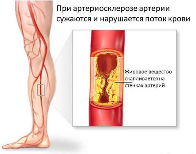 Облитерирующий атеросклероз сосудов нижних конечностей: лечение, классификация, симптомы