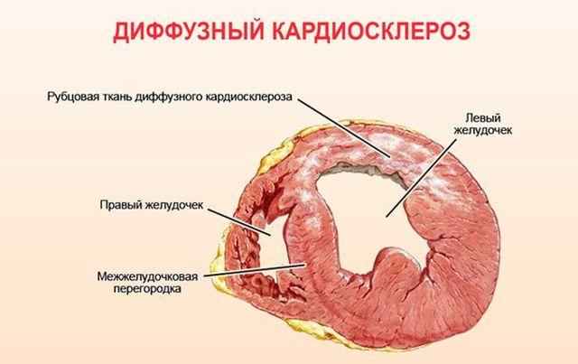 Кардиосклероз что это такое и как лечить, симптомы и причины
