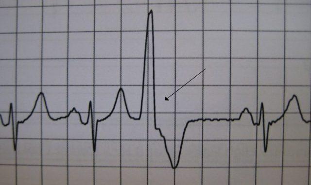 Желудочковая экстрасистолия: что это такое, лечение и последствия