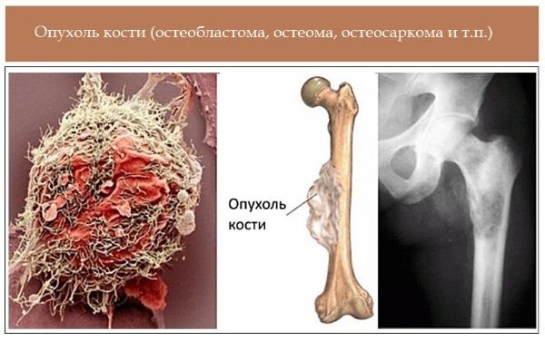 Щелочная фосфатаза: норма у женщин и мужчин и что она показывает в анализе крови