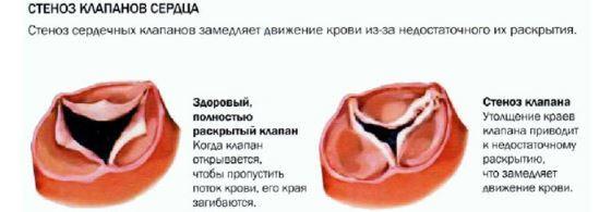 Гипертрофия правого предсердия: что эт такое, ЭКГ признаки, лечение и причины