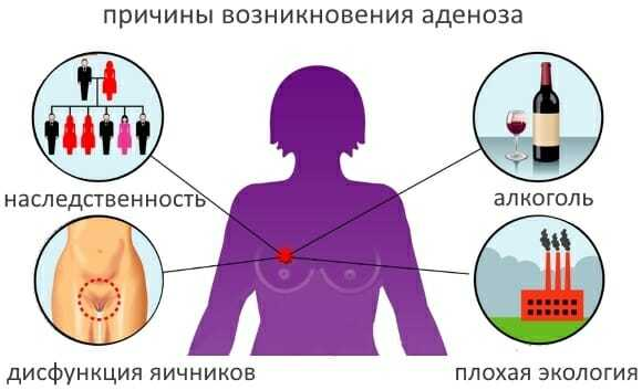 Аденоз молочной железы: что это такое, виды, диагностика, способы лечения