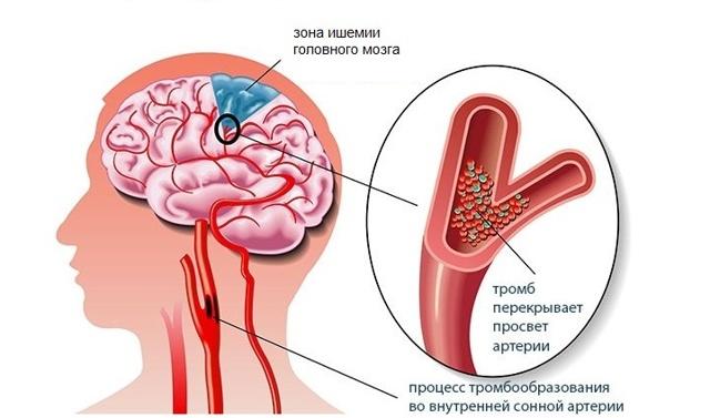 Ишемия головного мозга: что это такое, симптомы и лечение