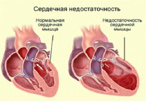 Хроническая сердечная недостаточность (ХСН): классификация, степени и стадии