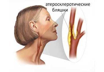 Дуплексное сканирование сосудов головы и шеи: что это такое, как делается и что показывает