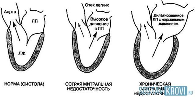 Митральная регургитация 1, 2, 3, 4 степени: что это такое, симптомы и лечение