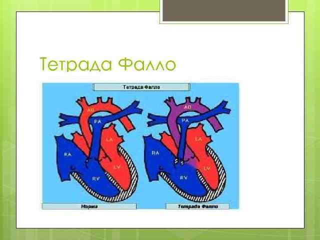Тетрада Фалло: что это, симптомы, оперативное лечение и последствия