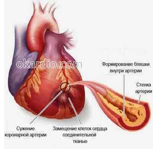 Атеросклеротическая болезнь сердца: симптомы и лечение, причина смерти