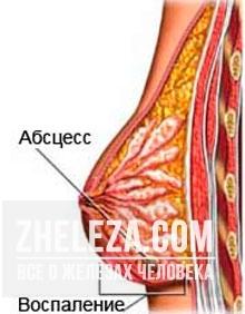 Увеличилась грудь, наливаются и болят молочные железы: основные причины