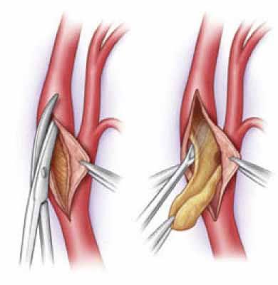 Тромбоз: что это, симптомы и признаки, лечение венозной и артериальной формы