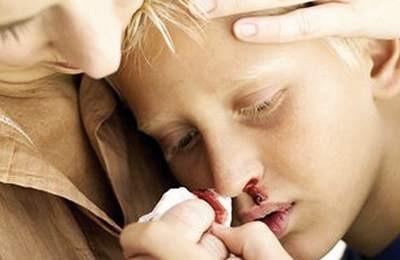 Гемофилия: что это за болезнь у детей и взрослых, симптомы, причины и лечение