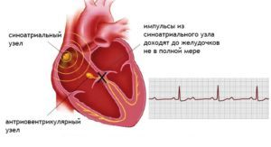 Блокада сердца: что это, причины, виды, симптомы и как лечить